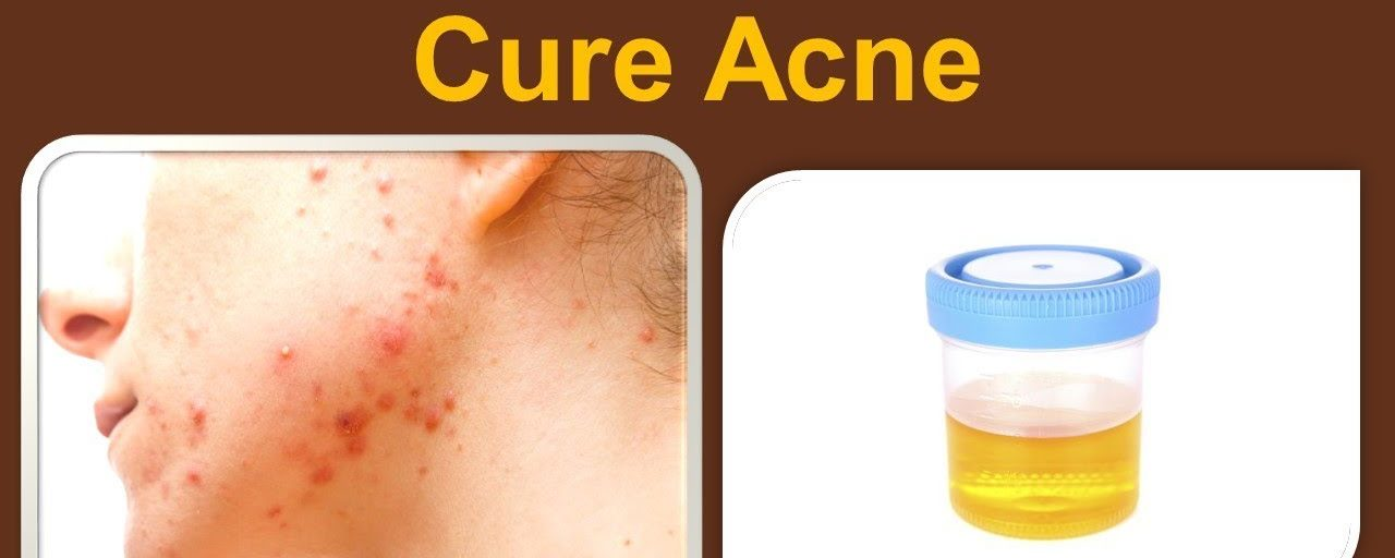 Urine Therapy To Cure Acne -Wonder Results